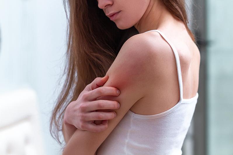 Irritation de la peau - tensioactifs sulfatés